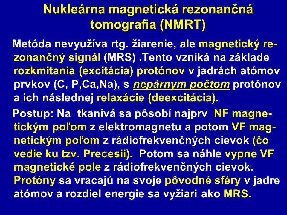 Nukleárna magnetická rezonančná tomografia (NMRT) Metóda nevyužíva rtg. žiarenie, ale magnetický re- zonančný signál (MRS).Tento vzniká na základe roz