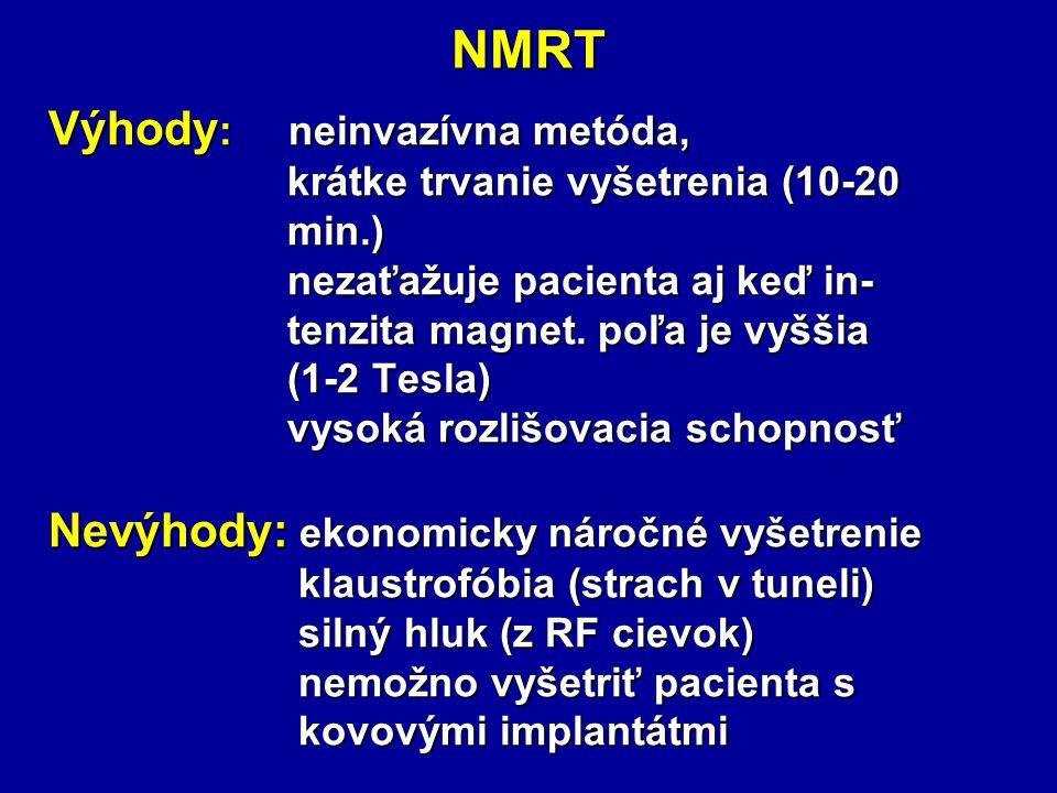NMRT Výhody : neinvazívna metóda, krátke trvanie vyšetrenia (10-20 krátke trvanie vyšetrenia (10-20 min.) min.) nezaťažuje pacienta aj keď in- nezaťažuje pacienta aj keď in- tenzita magnet.
