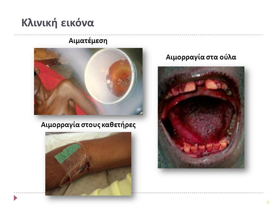 Αιμορραγία στους καθετήρες Αιματέμεση Αιμορραγία στα ούλα 8 Κλινική εικόνα