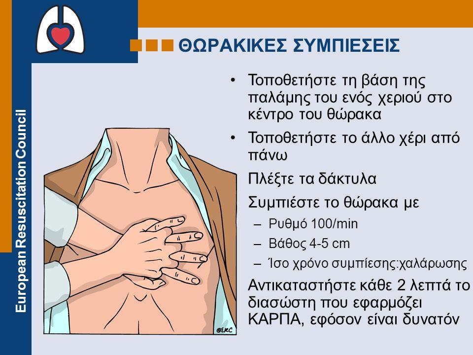 European Resuscitation Council Τοποθετήστε τη βάση της παλάμης του ενός χεριού στο κέντρο του θώρακα Τοποθετήστε το άλλο χέρι από πάνω Πλέξτε τα δάκτυλα Συμπιέστε το θώρακα με –Ρυθμό 100/min –Βάθος 4-5 cm –Ίσο χρόνο συμπίεσης:χαλάρωσης Αντικαταστήστε κάθε 2 λεπτά το διασώστη που εφαρμόζει ΚΑΡΠΑ, εφόσον είναι δυνατόν ΘΩΡΑΚΙΚΕΣ ΣΥΜΠΙΕΣΕΙΣ
