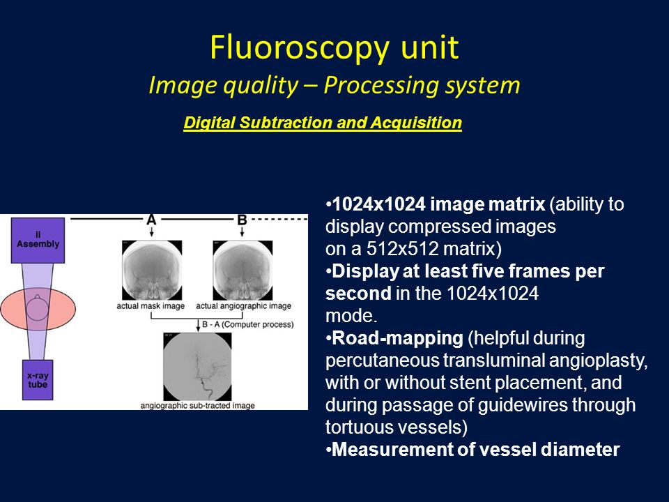 Fluoroscopy unit Image quality – Processing system 1024x1024 image matrix (ability to display compressed images on a 512x512 matrix) Display at least