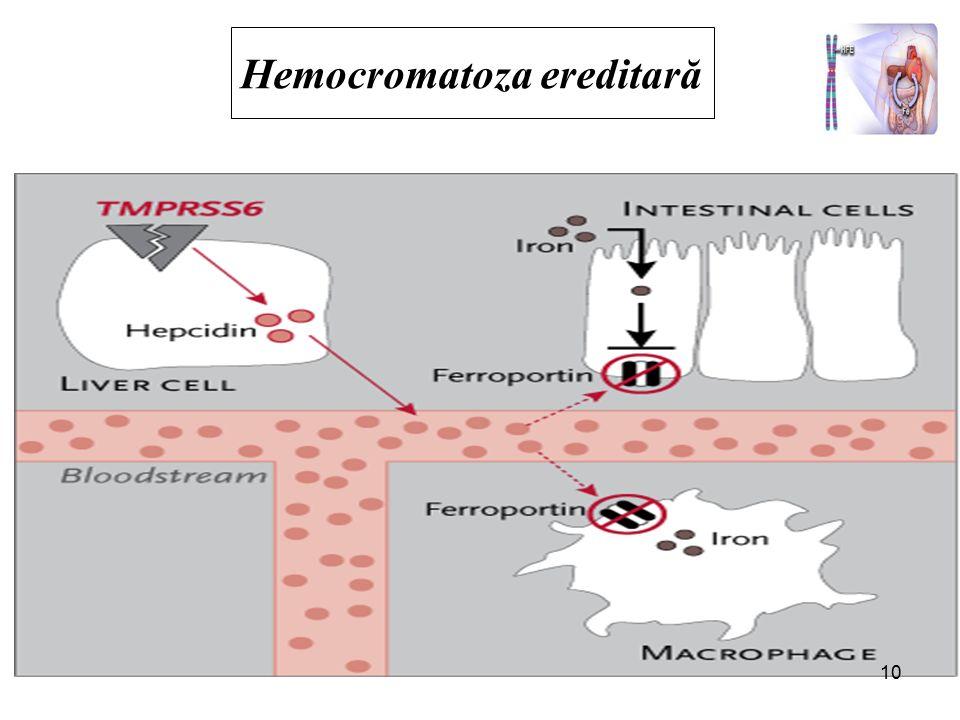 Hemocromatoza ereditară Definiţie: boală ereditară a metabolismului fierului, mutaţie punctiformă la nivelul braţului scurt al cromozomului 6 HLA- H, cisteină este înlocuita cu tirozină transmitere autozomal recesivă determină ↑ absorbţiei intestinale de fier cu depunerea, in principal: −Ficat; −Pancreas; −Cord; −Rinichi; −Tegumente.