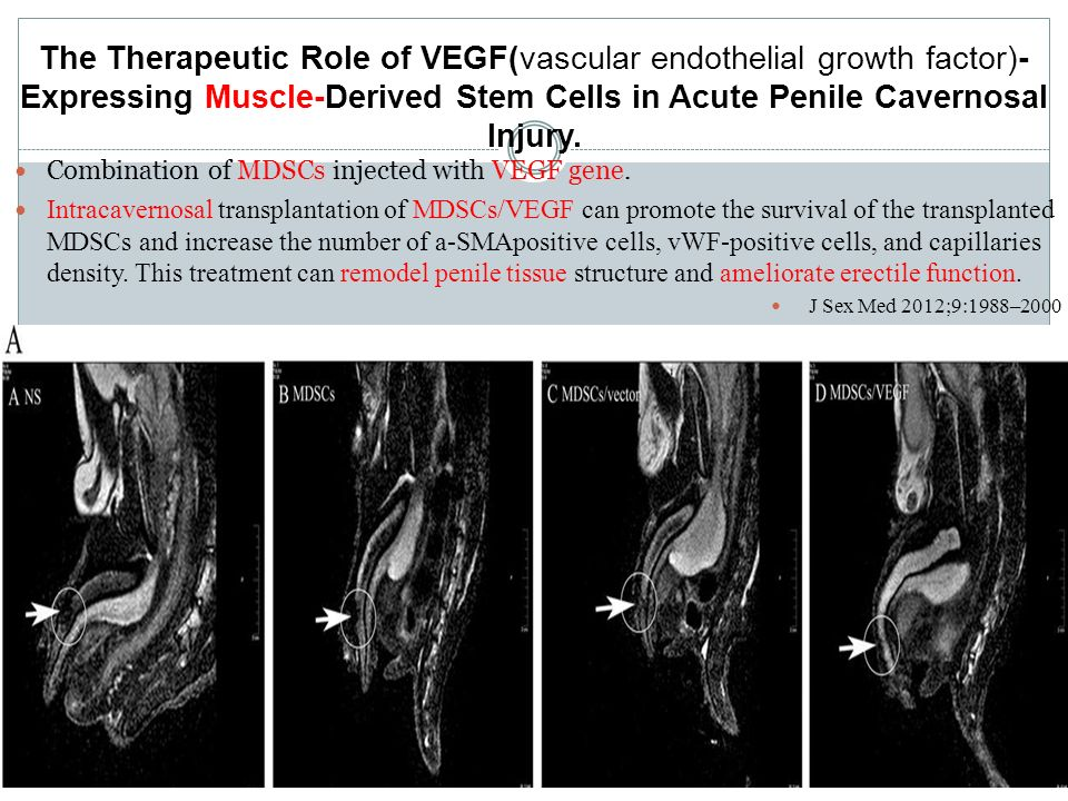 The Therapeutic Role of VEGF(vascular endothelial growth factor)- Expressing Muscle-Derived Stem Cells in Acute Penile Cavernosal Injury.