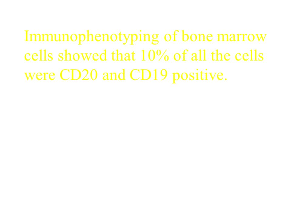 Immunophenotyping of bone marrow cells showed that 10% of all the cells were CD20 and CD19 positive.