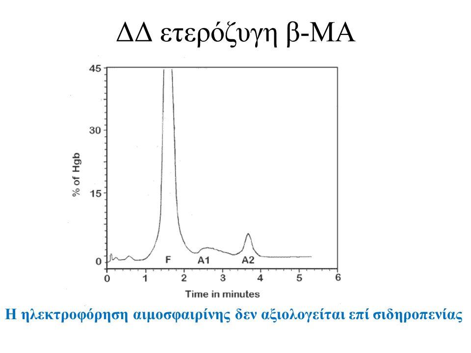 ΔΔ ετερόζυγη β-ΜΑ Η ηλεκτροφόρηση αιμοσφαιρίνης δεν αξιολογείται επί σιδηροπενίας