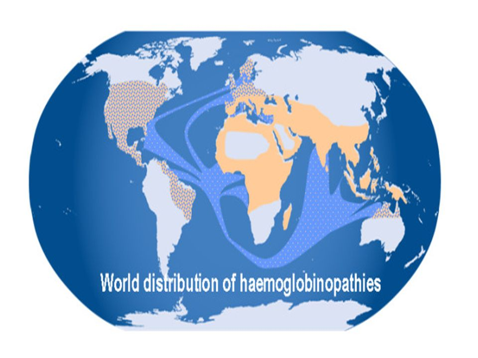 The world distribution of haemoglobinopathies overlaps the geographic distribution of malaria. The prevalence has increased in previously non-endemic