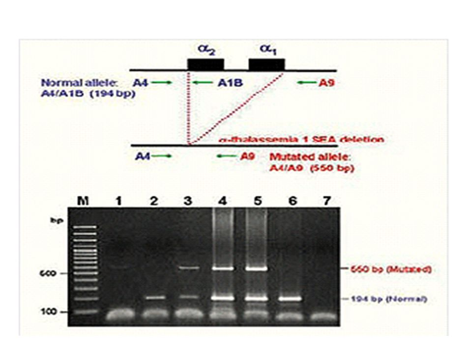 Diagram of gap-PCR for detection of α-thalassemia 1 SEA deletion and agarose-gel electrophoresis showing 3 different genotypes from representative bla