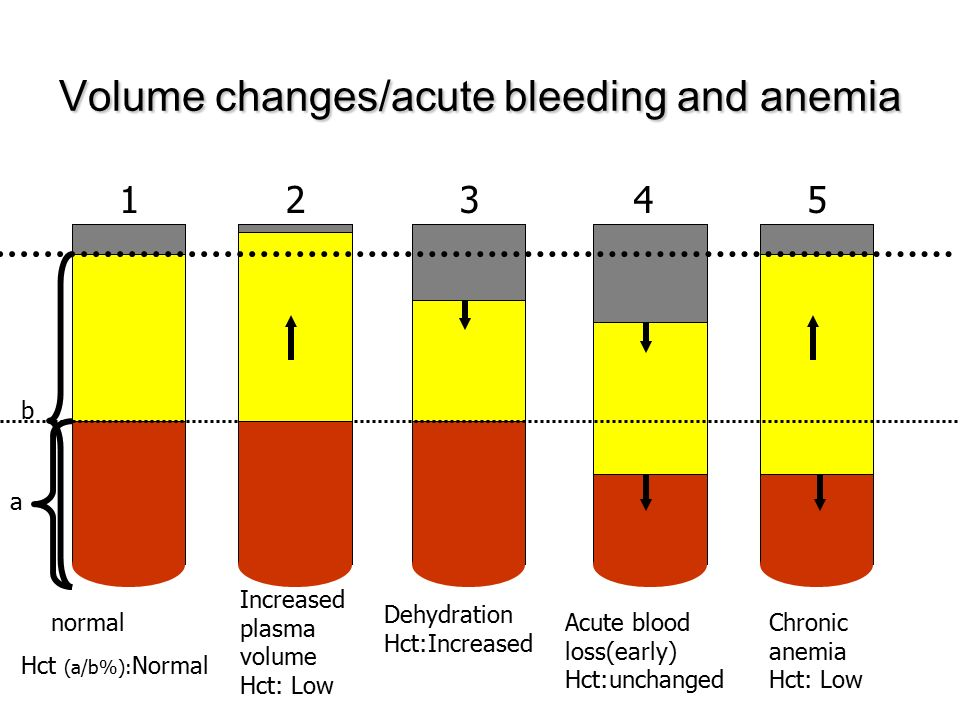 Volume changes/acute bleeding and anemia normal Hct (a/b%): Normal Dehydration Hct:Increased Acute blood loss(early) Hct:unchanged Chronic anemia Hct: