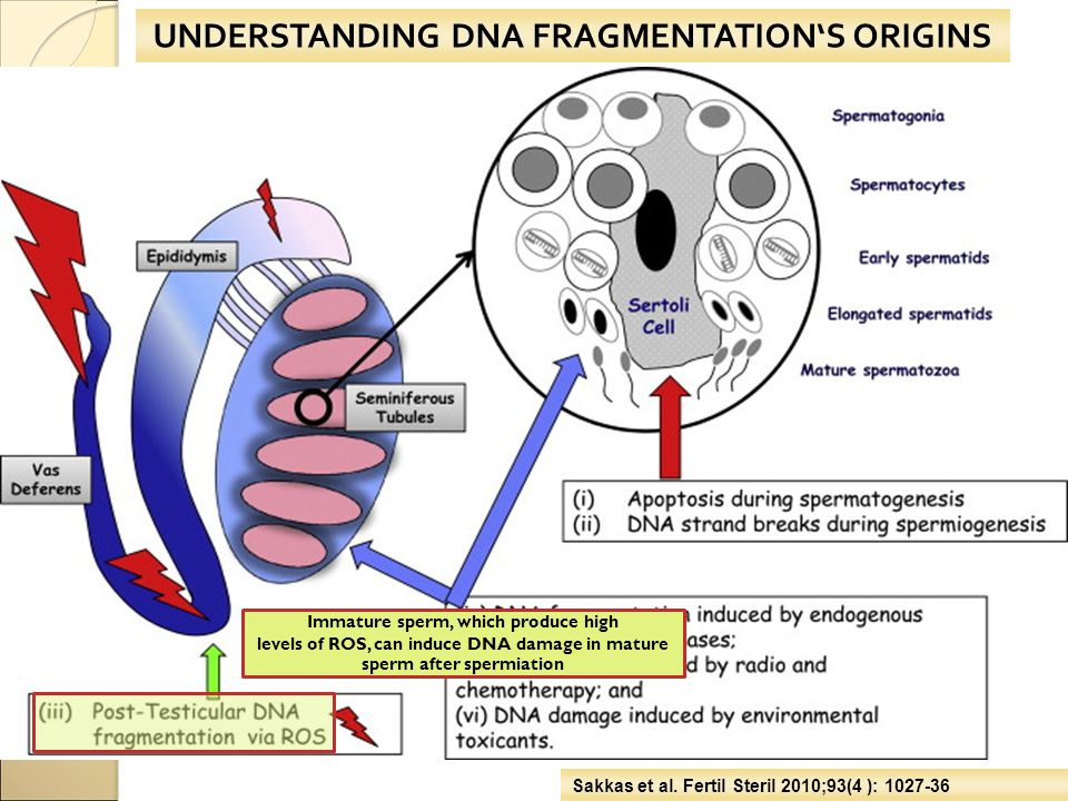 UNDERSTANDING DNA FRAGMENTATION'S ORIGINS Sakkas et al. Fertil Steril 2010;93(4 ): 1027-36 Immature sperm, which produce high levels of ROS, can induc