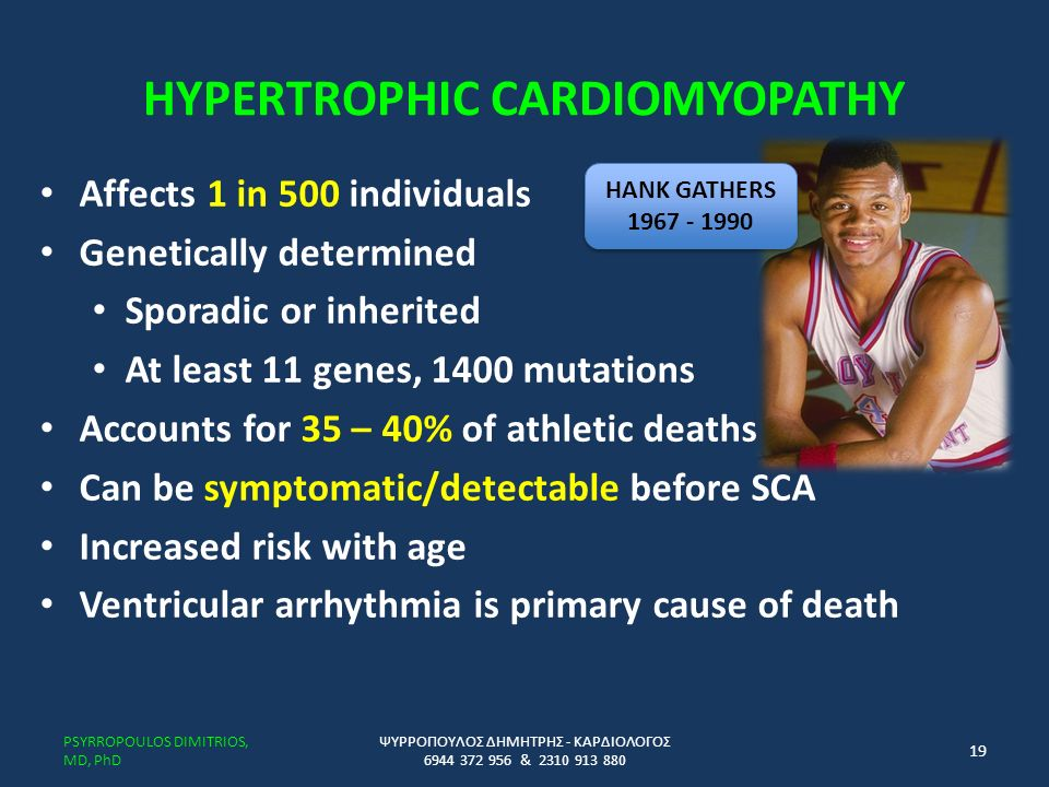 HYPERTROPHIC CARDIOMYOPATHY Affects 1 in 500 individuals Genetically determined Sporadic or inherited At least 11 genes, 1400 mutations Accounts for 35 – 40% of athletic deaths Can be symptomatic/detectable before SCA Increased risk with age Ventricular arrhythmia is primary cause of death ΨΥΡΡΟΠΟΥΛΟΣ ΔΗΜΗΤΡΗΣ - ΚΑΡΔΙΟΛΟΓΟΣ 6944 372 956 & 2310 913 880 PSYRROPOULOS DIMITRIOS, MD, PhD 19 HANK GATHERS 1967 - 1990