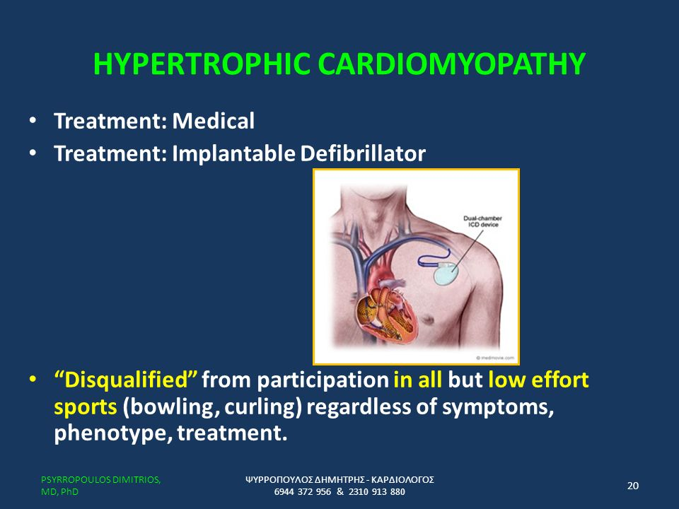 HYPERTROPHIC CARDIOMYOPATHY Treatment: Medical Treatment: Implantable Defibrillator Disqualified from participation in all but low effort sports (bowling, curling) regardless of symptoms, phenotype, treatment.