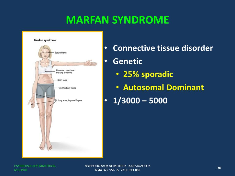 MARFAN SYNDROME Connective tissue disorder Genetic 25% sporadic Autosomal Dominant 1/3000 – 5000 ΨΥΡΡΟΠΟΥΛΟΣ ΔΗΜΗΤΡΗΣ - ΚΑΡΔΙΟΛΟΓΟΣ 6944 372 956 & 2310 913 880 PSYRROPOULOS DIMITRIOS, MD, PhD 30