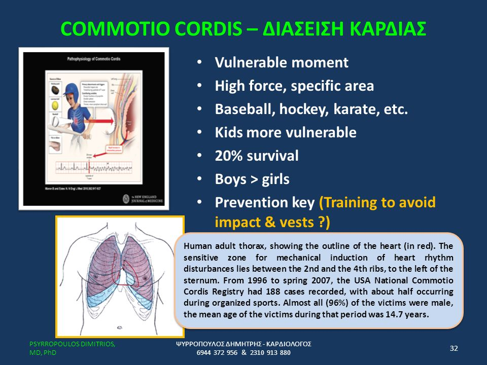 COMMOTIO CORDIS – ΔΙΑΣΕΙΣΗ ΚΑΡΔΙΑΣ Vulnerable moment High force, specific area Baseball, hockey, karate, etc.