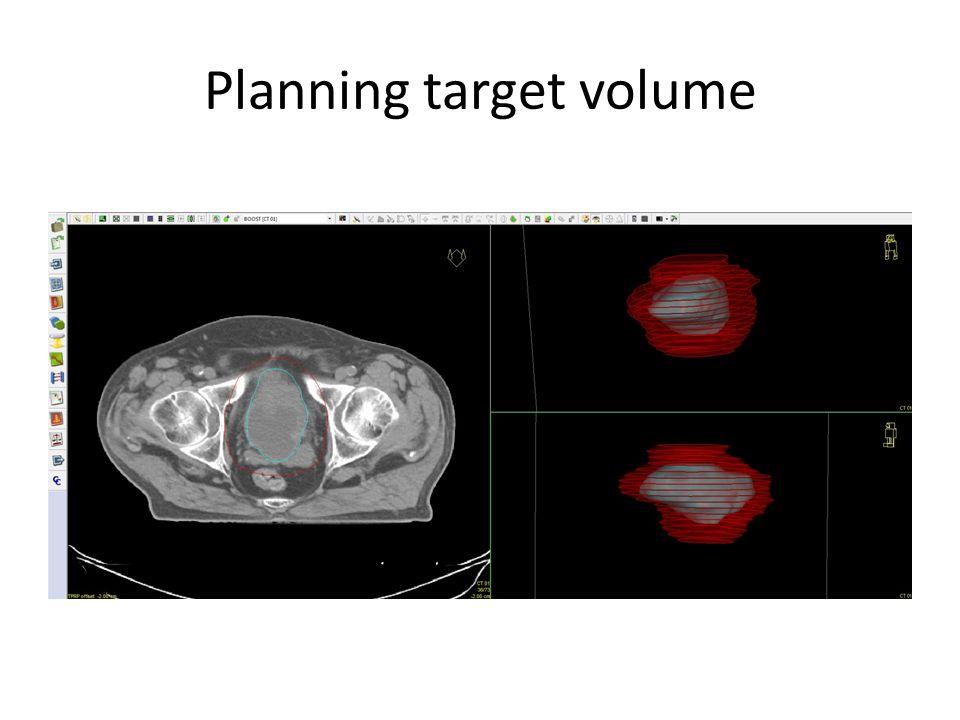 Planning target volume