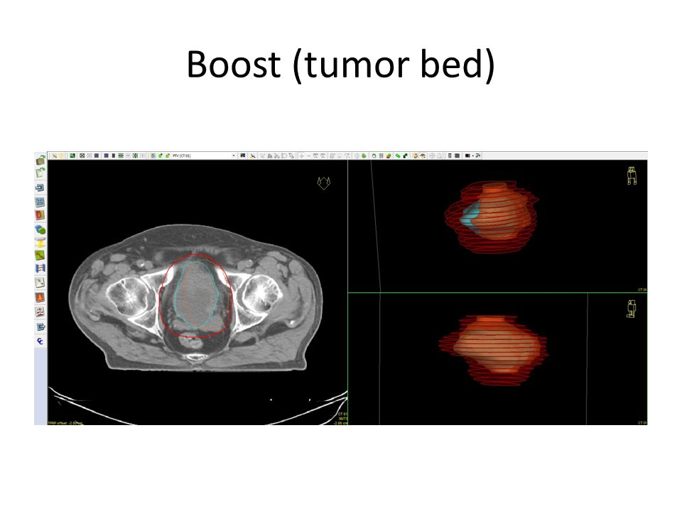 Boost (tumor bed)