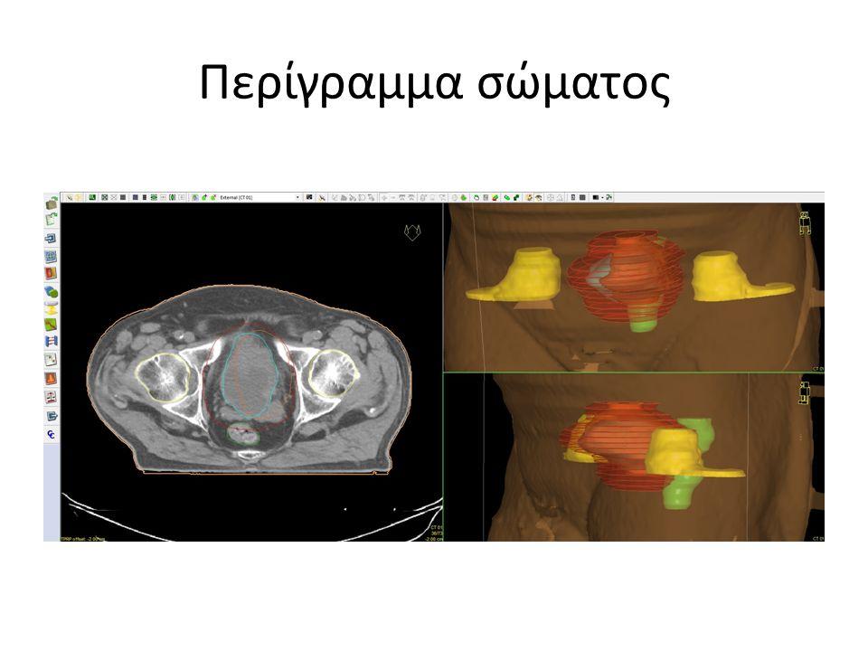 Περίγραμμα σώματος