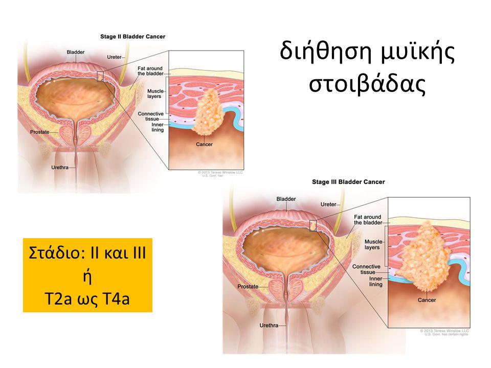 διήθηση μυϊκής στοιβάδας Στάδιο: ΙΙ και ΙΙΙ ή Τ2a ως T4a