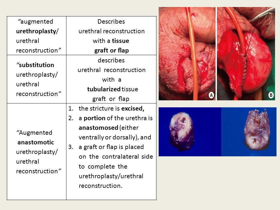 augmented urethroplasty/ urethral reconstruction Describes urethral reconstruction with a tissue graft or flap substitution urethroplasty/ urethral reconstruction describes urethral reconstruction with a tubularized tissue graft or flap Augmented anastomotic urethroplasty/ urethral reconstruction 1.the stricture is excised, 2.a portion of the urethra is anastomosed (either ventrally or dorsally), and 3.a graft or flap is placed on the contralateral side to complete the urethroplasty/urethral reconstruction.