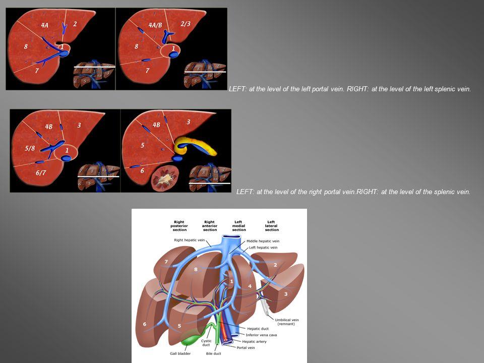 Left lung: lower lobe.2, Descending aorta. 3, Azygous vein.