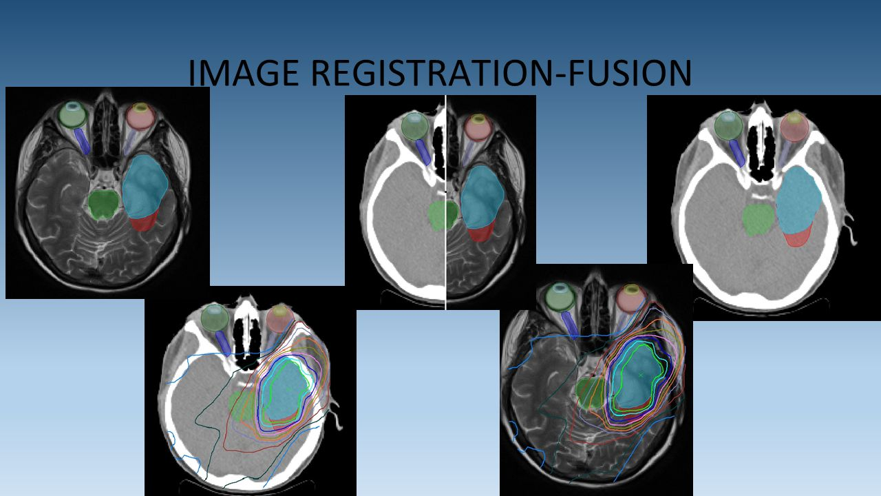 IMAGE REGISTRATION-FUSION