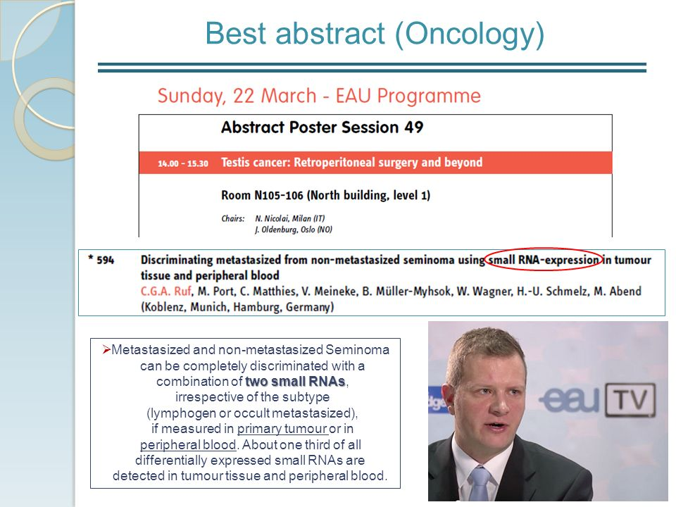 Best abstract (Oncology)  Metastasized and non-metastasized Seminoma can be completely discriminated with a two small RNAs combination of two small R