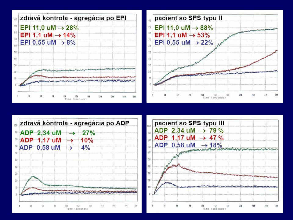 pacient so SPS typu IIzdravá kontrola - agregácia po EPI EPI 11,0 uM  28% EPI 1,1 uM  14% EPI 0,55 uM  8% EPI 11,0 uM  88% EPI 1,1 uM  53% EPI 0,55 uM  22 % ADP 2,34 uM  27% ADP 1,17 uM  10% ADP 0,58 uM  4% zdravá kontrola - agregácia po ADP ADP 2,34 uM  79 % ADP 1,17 uM  47 % ADP 0,58 uM  18% pacient so SPS typu III
