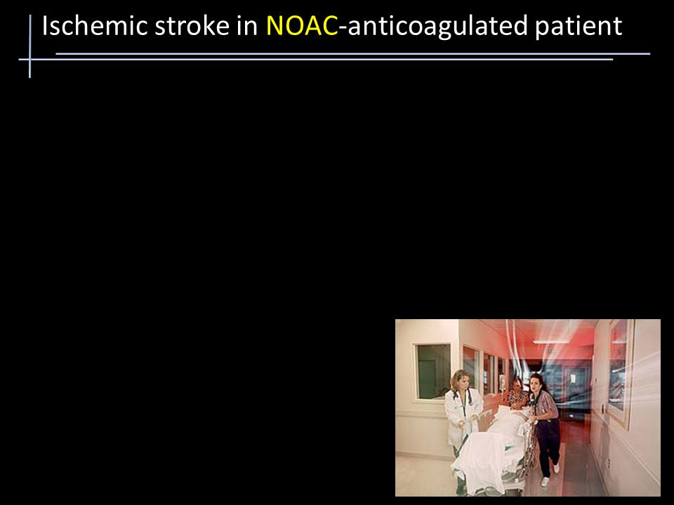 Step 1: Run Step 2: Antidote Step 3: CT scan Step 4: rTPA Ischemic stroke in NOAC-anticoagulated patient