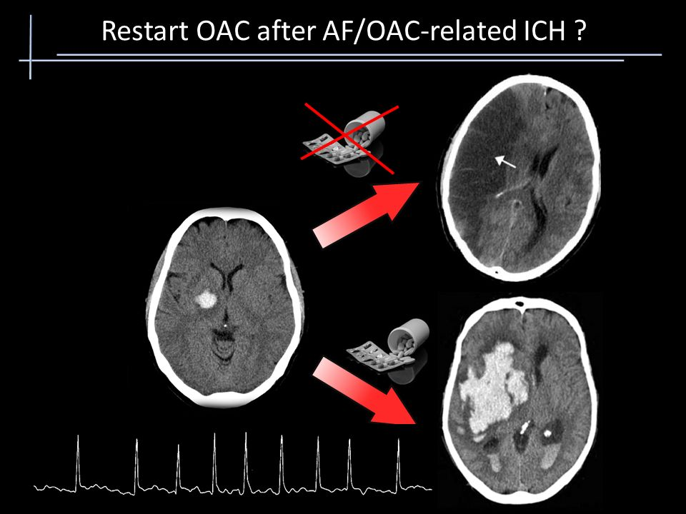 Restart OAC after AF/OAC-related ICH