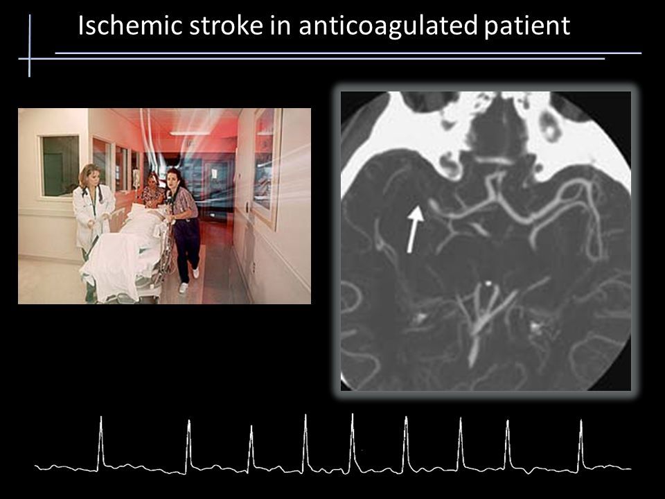 Ischemic stroke in anticoagulated patient