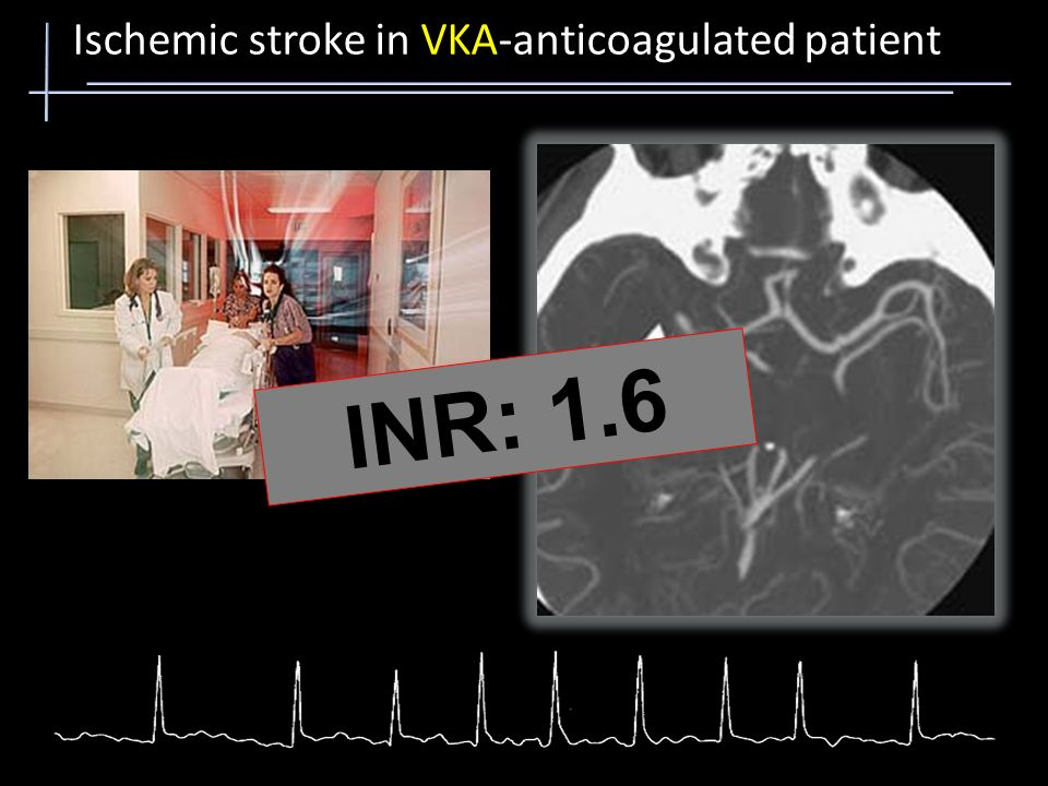 Ischemic stroke in VKA-anticoagulated patient Λήψη LMWH ή per os αντιπηκτικών (INR >1.5, aPTT >33sec)