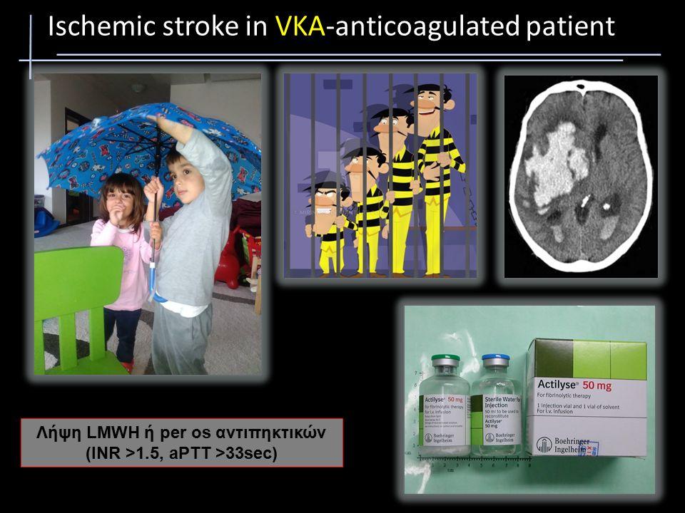 Ischemic stroke in NOAC-anticoagulated patient European Cardiology Review 2015;10:76–8