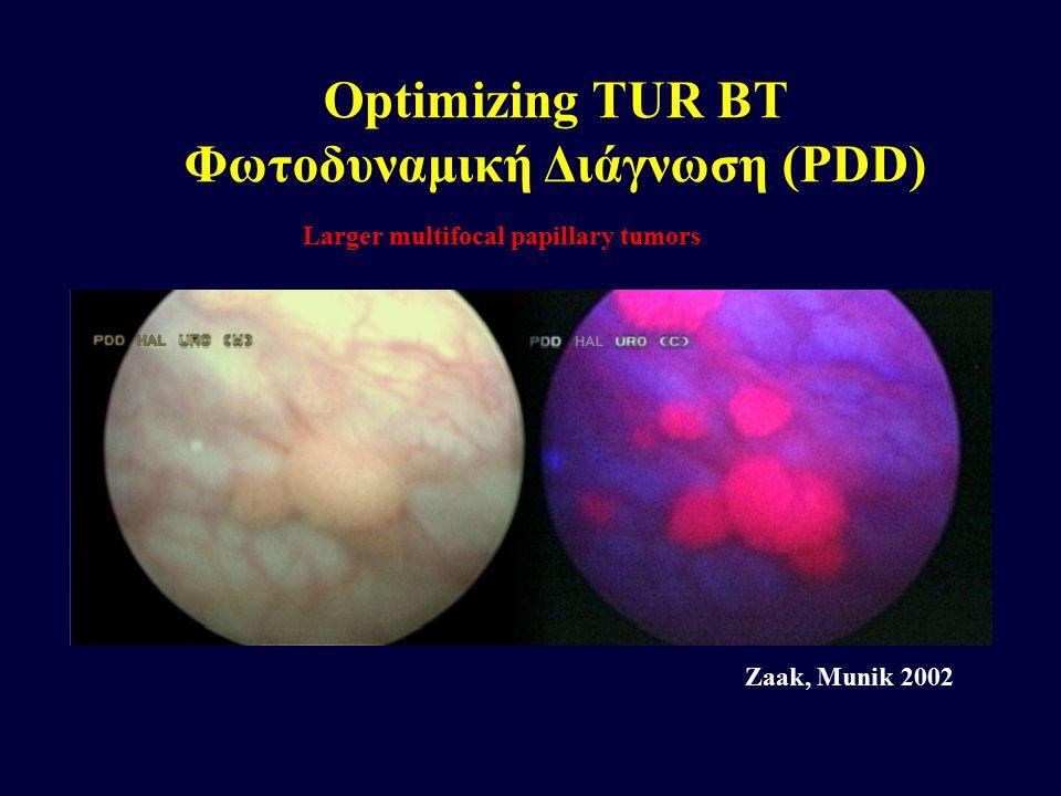 Larger multifocal papillary tumors Zaak, Munik 2002 Optimizing TUR BT Φωτοδυναμική Διάγνωση (PDD)