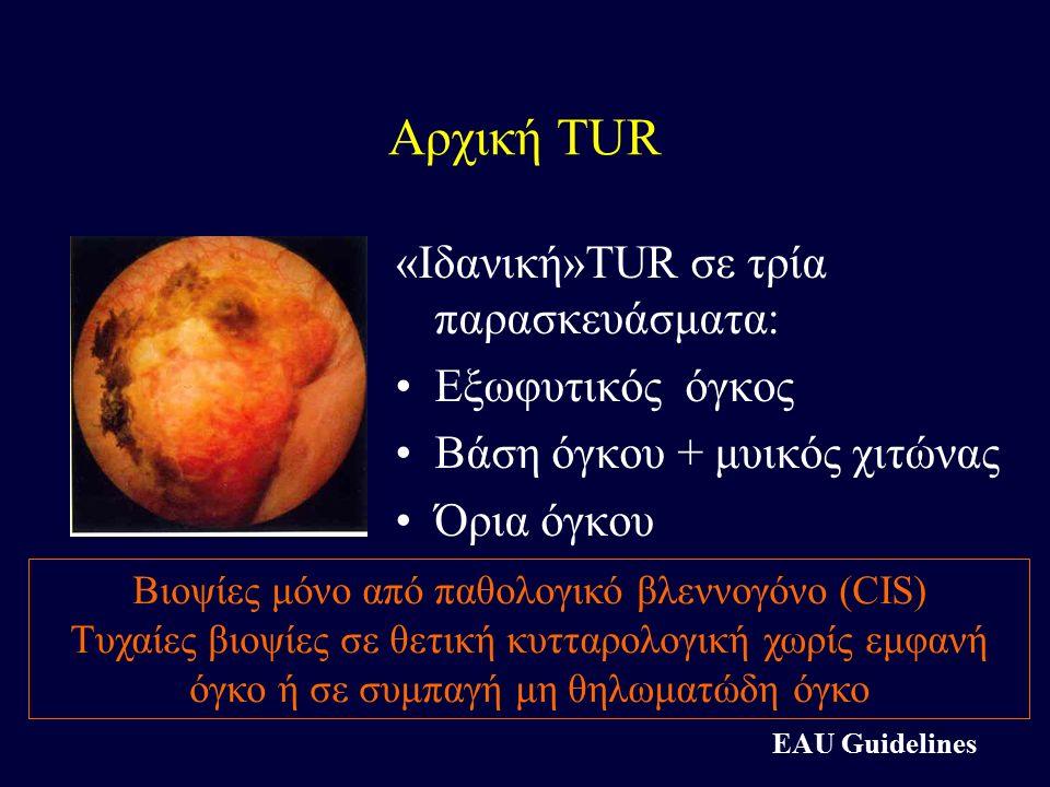 Αρχική TUR «Ιδανική»TUR σε τρία παρασκευάσματα: Εξωφυτικός όγκος Βάση όγκου + μυικός χιτώνας Όρια όγκου Βιοψίες μόνο από παθολογικό βλεννογόνο (CIS) Τ