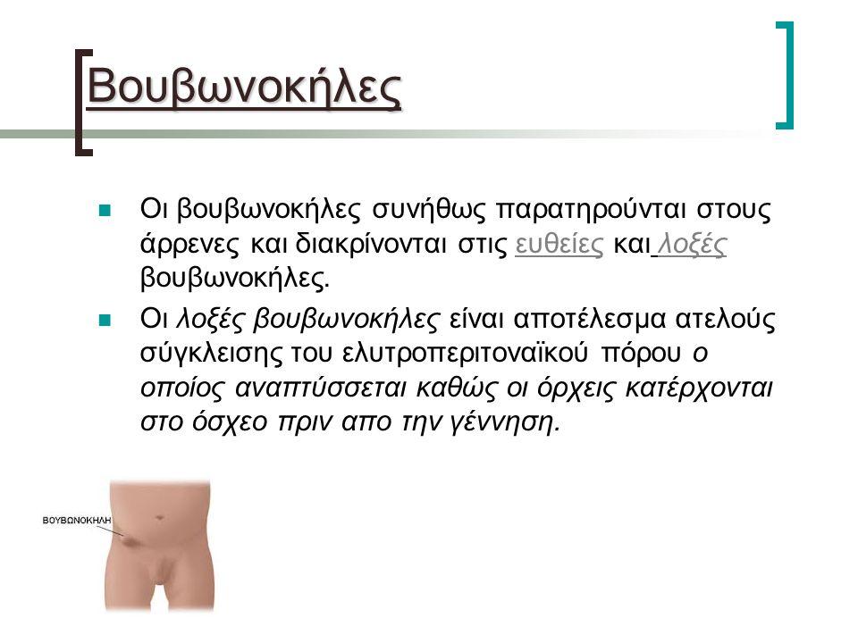 Βουβωνοκήλες Οι βουβωνοκήλες συνήθως παρατηρούνται στους άρρενες και διακρίνονται στις ευθείες και λοξές βουβωνοκήλες.