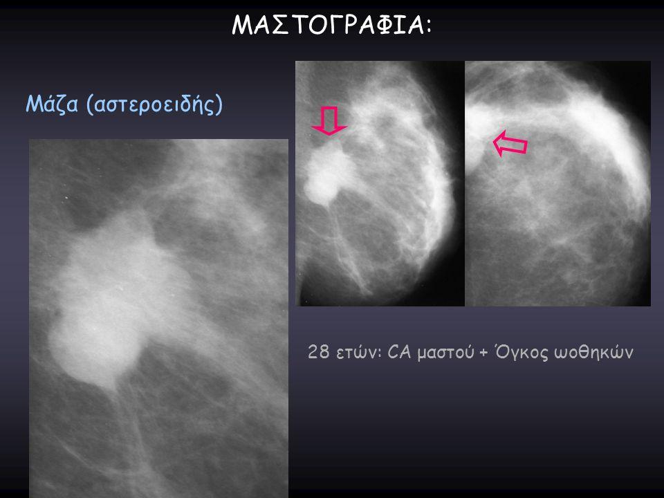 ΜΑΣΤΟΓΡΑΦΙΑ: Μάζα (αστεροειδής) 28 ετών: CA μαστού + Όγκος ωοθηκών
