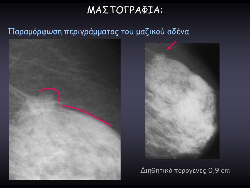 ΜΑΣΤΟΓΡΑΦΙΑ: Παραμόρφωση περιγράμματος του μαζικού αδένα Διηθητικό πορογενές 0,9 cm