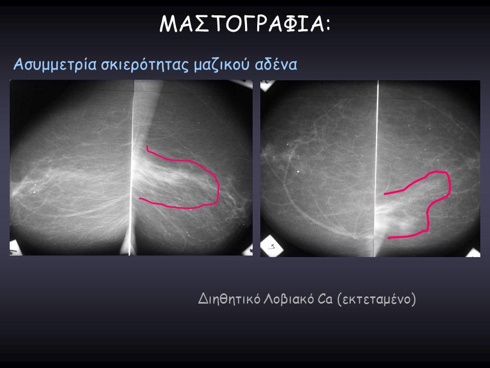 ΜΑΣΤΟΓΡΑΦΙΑ: Ασυμμετρία σκιερότητας μαζικού αδένα Διηθητικό Λοβιακό Ca (εκτεταμένο)