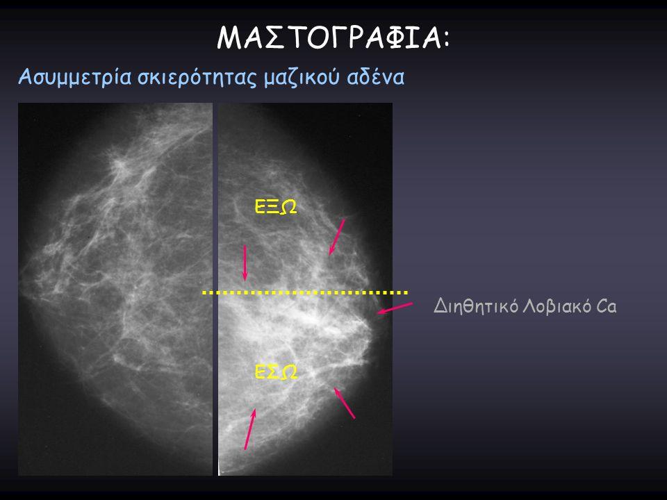 ΜΑΣΤΟΓΡΑΦΙΑ: Ασυμμετρία σκιερότητας μαζικού αδένα Διηθητικό Λοβιακό Ca ΕΞΩ ΕΣΩ