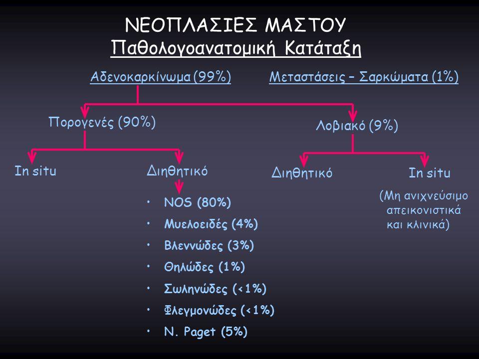 ΝΕΟΠΛΑΣΙΕΣ ΜΑΣΤΟΥ Παθολογοανατομική Κατάταξη Αδενοκαρκίνωμα (99%)Μεταστάσεις – Σαρκώματα (1%) Πορογενές (90%) In situΔιηθητικό NOS (80%) Μυελοειδές (4