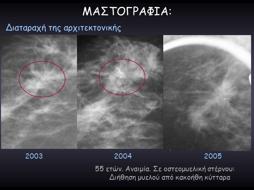 ΜΑΣΤΟΓΡΑΦΙΑ: Διαταραχή της αρχιτεκτονικής 200320042005 55 ετών. Αναιμία. Σε οστεομυελική στέρνου: Διήθηση μυελού από κακοήθη κύτταρα