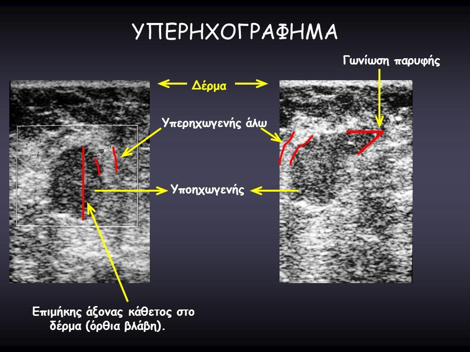 ΥΠΕΡΗΧΟΓΡΑΦΗΜΑ Δέρμα Επιμήκης άξονας κάθετος στο δέρμα (όρθια βλάβη). Υπερηχωγενής άλω Γωνίωση παρυφής Υποηχωγενής