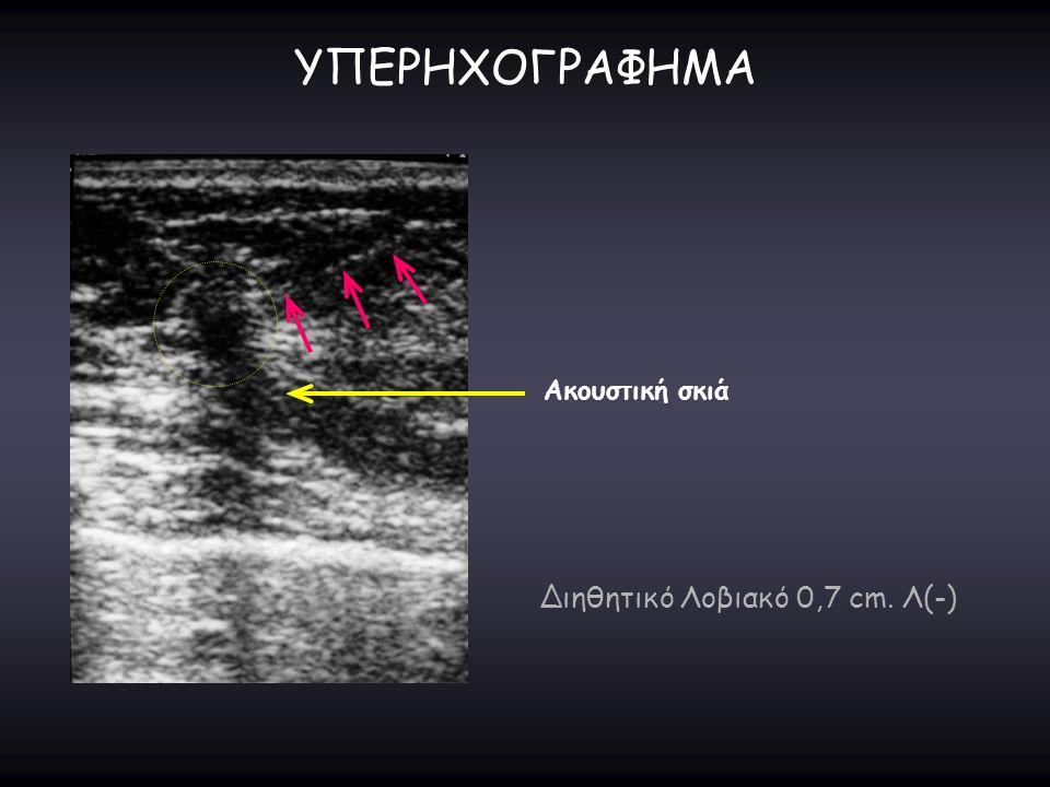 ΥΠΕΡΗΧΟΓΡΑΦΗΜΑ Ακουστική σκιά Διηθητικό Λοβιακό 0,7 cm. Λ(-)