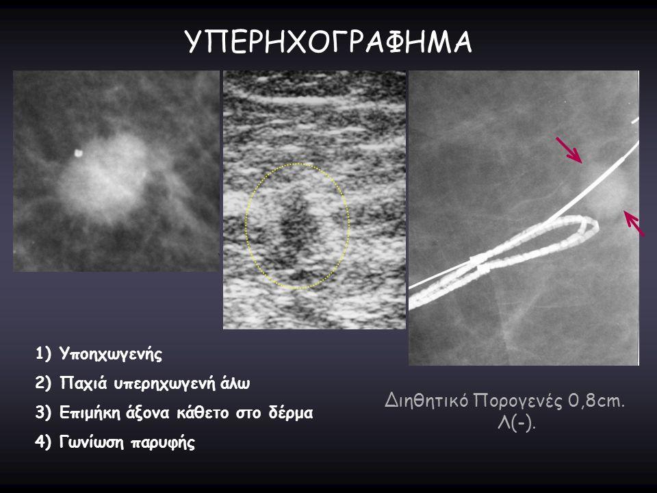 ΥΠΕΡΗΧΟΓΡΑΦΗΜΑ 1)Υποηχωγενής 2)Παχιά υπερηχωγενή άλω 3)Επιμήκη άξονα κάθετο στο δέρμα 4)Γωνίωση παρυφής Διηθητικό Πορογενές 0,8cm. Λ(-).
