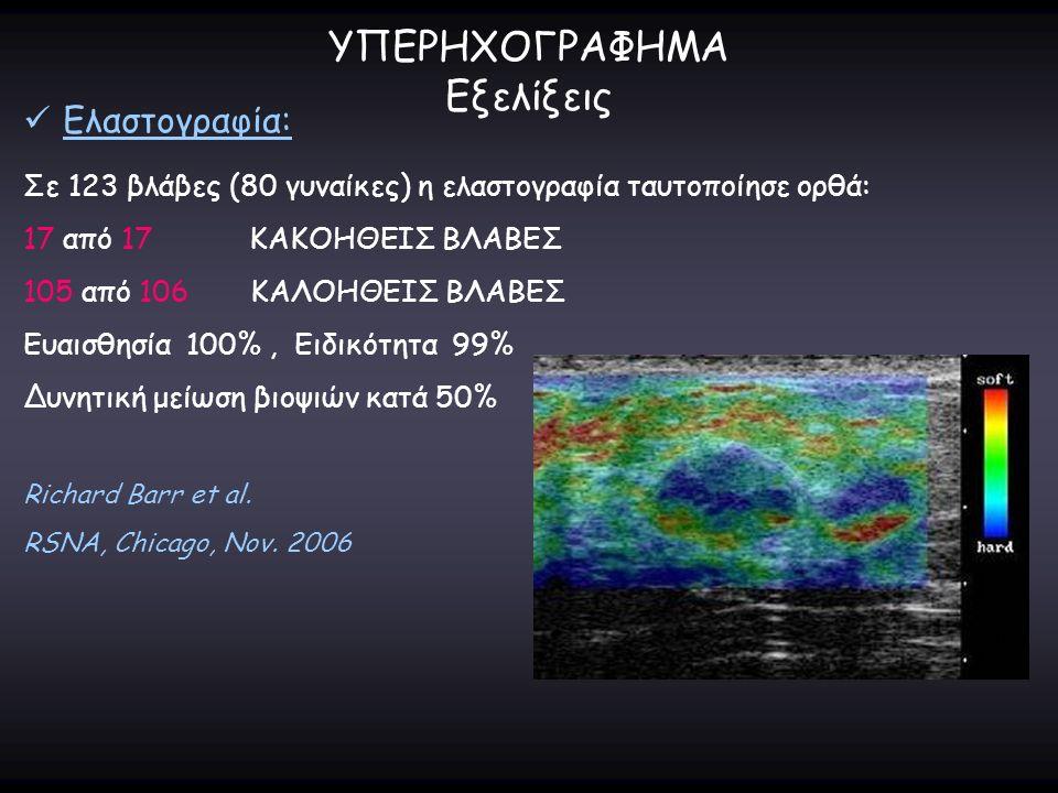 ΥΠΕΡΗΧΟΓΡΑΦΗΜΑ Εξελίξεις Ελαστογραφία: Σε 123 βλάβες (80 γυναίκες) η ελαστογραφία ταυτοποίησε ορθά: 17 από 17 ΚΑΚΟΗΘΕΙΣ ΒΛΑΒΕΣ 105 από 106 ΚΑΛΟΗΘΕΙΣ Β