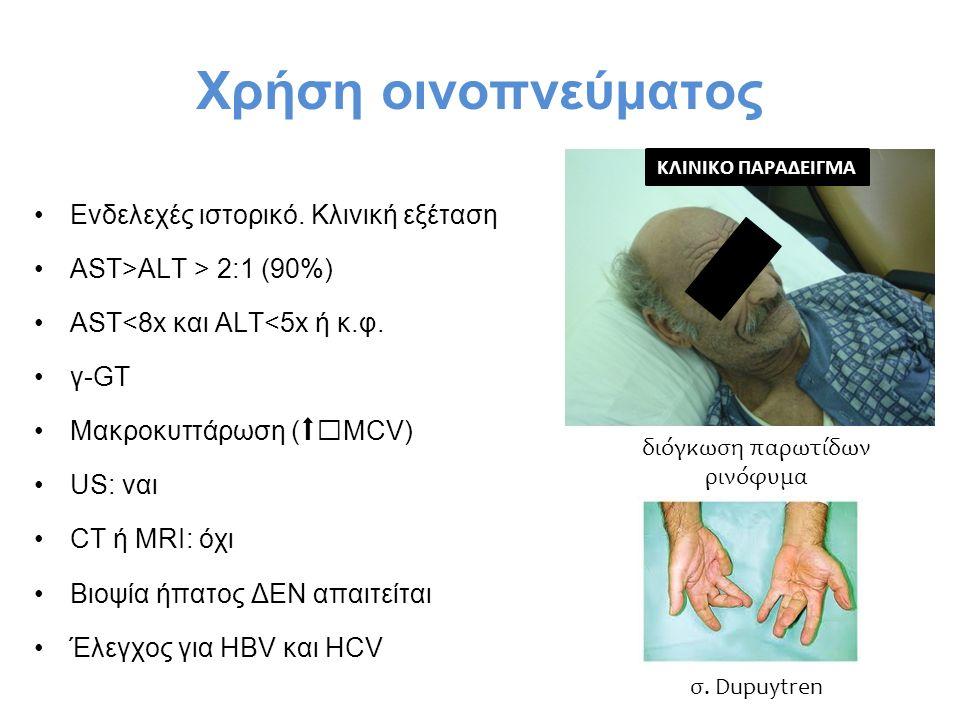 Χρήση οινοπνεύματος Ενδελεχές ιστορικό. Κλινική εξέταση AST>ALT > 2:1 (90%) AST<8x και ALT<5x ή κ.φ. γ-GT Μακροκυττάρωση (MCV) US: ναι CT ή MRI: όχι Β