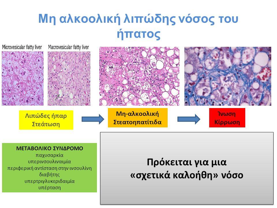 Μη αλκοολική λιπώδης νόσος του ήπατος Λιπώδες ήπαρ Στεάτωση Μη-αλκοολική Στεατοηπατίτιδα Ίνωση Κίρρωση ΜΕΤΑΒΟΛΙΚΟ ΣΥΝΔΡΟΜΟ παχυσαρκία υπερινσουλιναιμία περιφερική αντίσταση στην ινσουλίνη διαβήτης υπερτριγλυκεριδαιμία υπέρταση Πρόκειται για μια «σχετικά καλοήθη» νόσο Πρόκειται για μια «σχετικά καλοήθη» νόσο