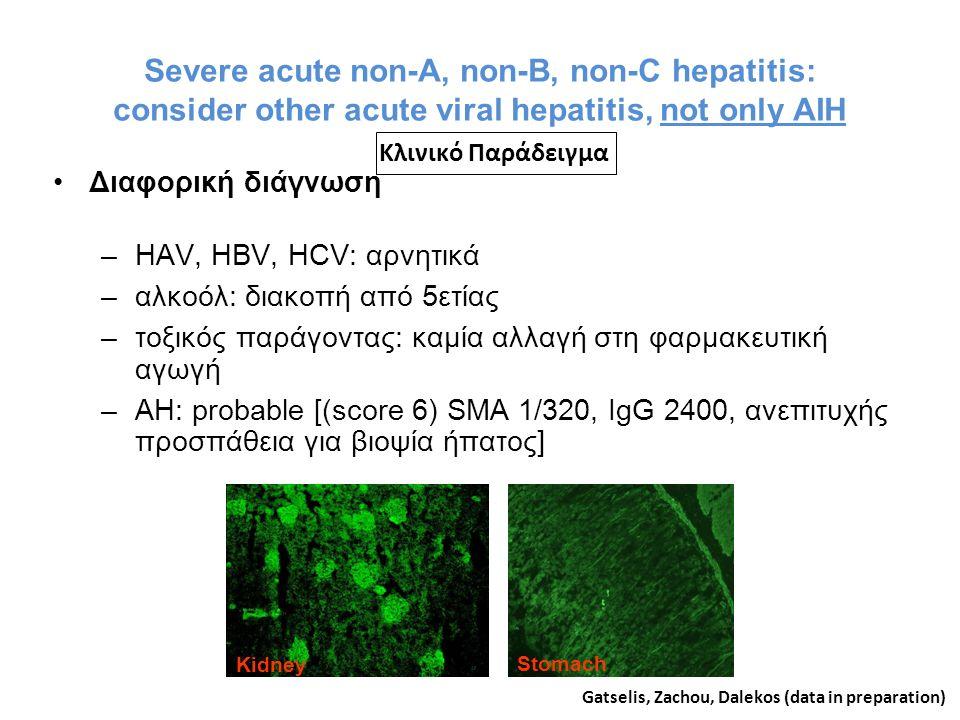 Severe acute non-A, non-B, non-C hepatitis: consider other acute viral hepatitis, not only AIH Διαφορική διάγνωση –HAV, HBV, HCV: αρνητικά –αλκοόλ: διακοπή από 5ετίας –τοξικός παράγοντας: καμία αλλαγή στη φαρμακευτική αγωγή –AH: probable [(score 6) SMA 1/320, IgG 2400, ανεπιτυχής προσπάθεια για βιοψία ήπατος] Gatselis, Zachou, Dalekos (data in preparation) Kidney Stomach Κλινικό Παράδειγμα