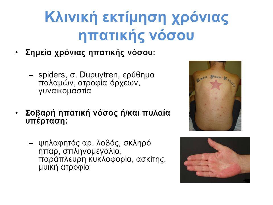 Κλινική εκτίμηση χρόνιας ηπατικής νόσου Σημεία χρόνιας ηπατικής νόσου: –spiders, σ. Dupuytren, ερύθημα παλαμών, ατροφία όρχεων, γυναικομαστία Σοβαρή η