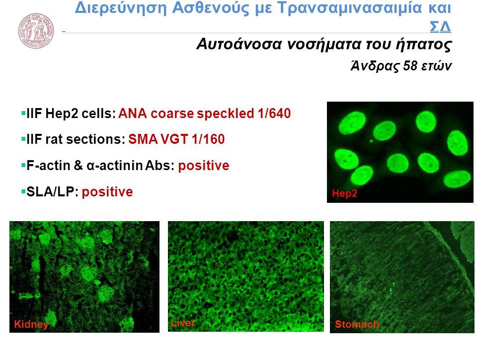 Διερεύνηση Ασθενούς με Τρανσαμινασαιμία και ΣΔ Αυτοάνοσα νοσήματα του ήπατος Άνδρας 58 ετών Liver Hep2 KidneyStomach  IIF Hep2 cells: ANA coarse spec