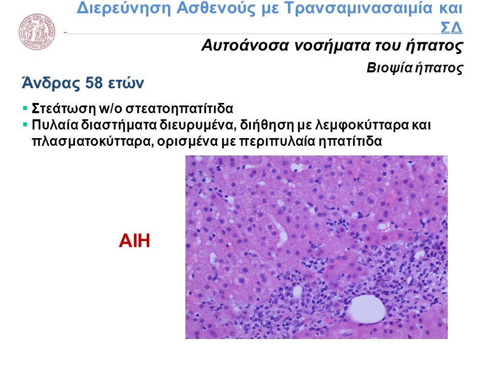 Διερεύνηση Ασθενούς με Τρανσαμινασαιμία και ΣΔ Αυτοάνοσα νοσήματα του ήπατος Βιοψία ήπατος Άνδρας 58 ετών  Στεάτωση w/o στεατοηπατίτιδα  Πυλαία διασ